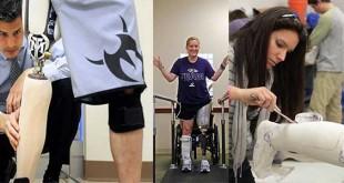 Prosthetics and Orthotics